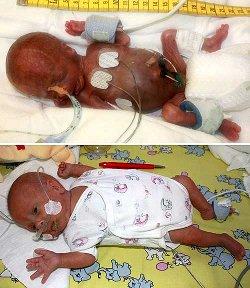 Sobrevive un bebé que pesó 275 gramos al nacer en la semana 25 de gestación