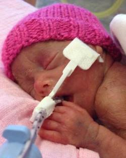 Los padres de Emily Caines lanzan una campaña para cambiar la ley del aborto en Gran Bretaña