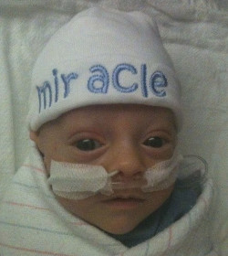 Cumple cinco años el bebé milagro que sobrevivió tras nacer en la 25 semana de gestación
