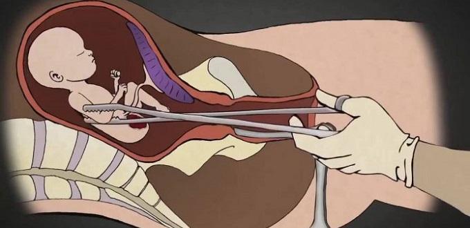 «Corto las cuerdas vocales a los fetos para que no puedan gritar»